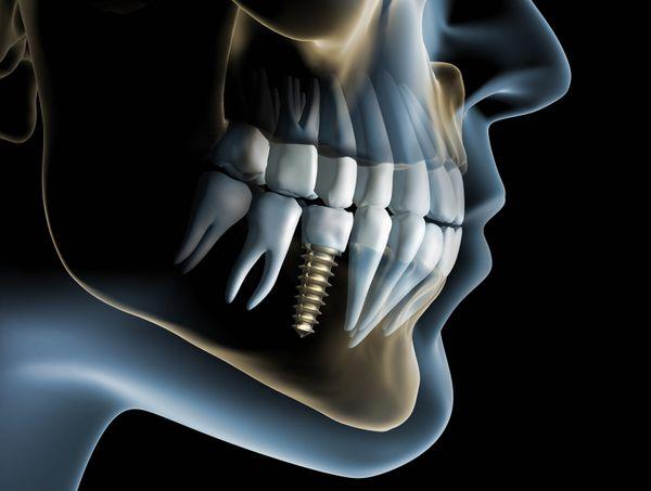 Riabilitazione Implantare e Protesica